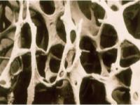 骨粗鬆症参考写真2