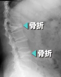 骨粗鬆症参考写真3