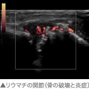 リウマチの関節(骨の破壊と炎症)